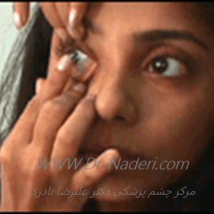 گذاشتن لنز تماسی نرم Soft  Contact lens