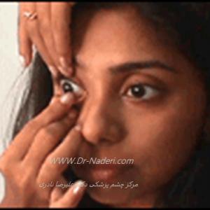 برداشتن لنز تماسی نرمContact lens removal