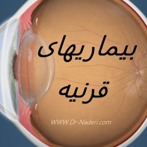 بیماریهای قرنیه Corneal disease