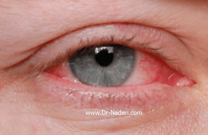 قرمزی چشم ناشی از خشکی چشمDry Eye