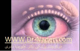 علل خشکی چشم Dry Eye cause