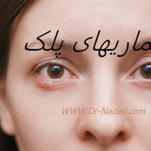 بیماریهای پلک Eyelid disease