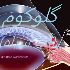 گلوکوم (آب سیاه) Glaucoma