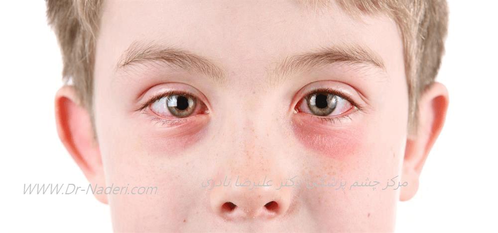 کنژنکتیویت آلرژیک Allergic conjunctivitis