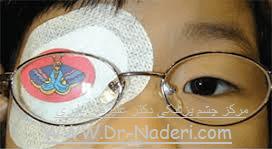 بستن چشم خوب در درمان تنبلی چشم Amblyopia Treatment