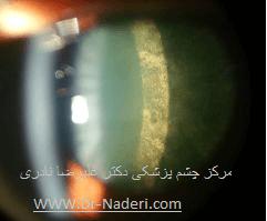 آب مروارید زیر کپسول قدامی Anterior Subcapsular cataract
