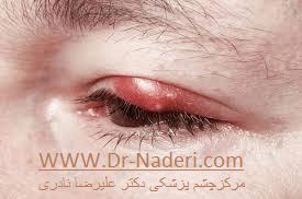 گل مژه در زمینه بلفاریت Blepharitis and Hordeolum
