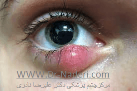 شالازیون در زمینه بلفاریت Blepharitis and Chalazion
