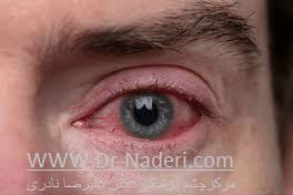 خشکی چشم در زمینه بلفاریت Blepharitis and Dry Eye