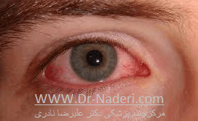 قرمزی چشم در زمینه بلفاریت Blepharitis and Red Eye