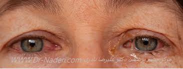 قرمزی چشم به علت کنژنکتیویت Conjunctivitis