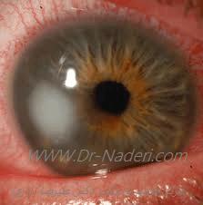قرمزی چشم ناشی از خراش یا عفونت قرنیه Corneal Ulcer