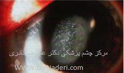 آب مروارید دانه برفی در بیماران دیابتی Diabetic Snowflake cataract