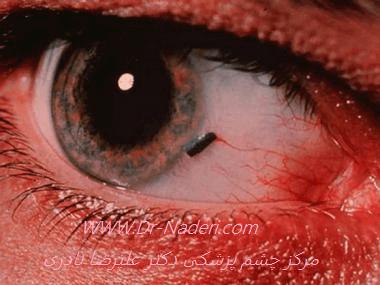 قرمزی چشم ناشی از جسم خارجی سطح چشم Eye forien body