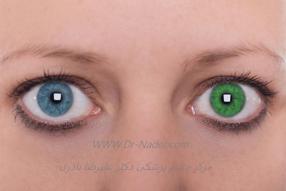 هترو کرومی فوکس (رنگ متفاوت دو چشم)Fuchs hetrochromic iridocyclitis