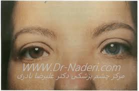 هتروکرومی فوکس با آب مروارید Fuchs iridocyclitis