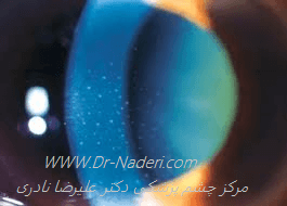 رسوبات قرنیه ای در هتروکرومی فوکسFuchs iridocyclitis