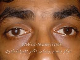 آب مروارید در چشم چپ در بیماری هتروکرومی فوکسFuchs iridocyclitis