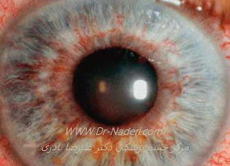 روبئوزیس عنبیه در بیماری فوکس Fuchs iridocyclitis
