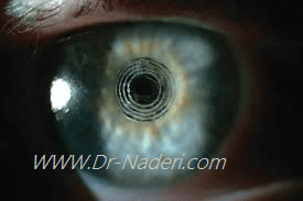 لیزر اینتراکور Intracor Femtosecond Laser