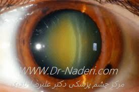 آب مروارید هسته ای Nuclear sclerosis cataract