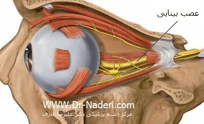 عصب بینایی Optic Nerve