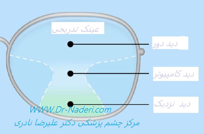 عینک تدریجی Progressive Glass
