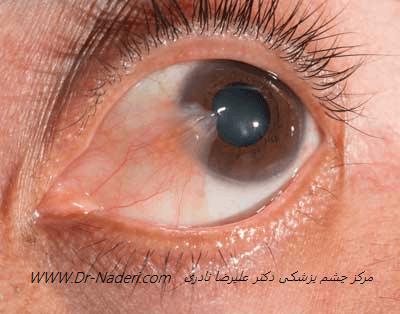 قرمزی چشم به علت ناخنک Ptrygium Red Eye
