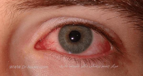 قرمزی چشم ناشی از خشکی چشم Red Eye due to Dry Eye