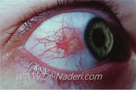 قرمزی چشم ناشی از اسکلریت Scleritis