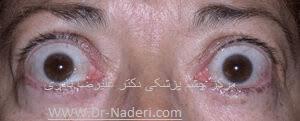 بیماری تیروئیدی چشم Thyroid Eye Disease