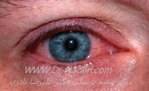 قرمزی چشم ناشی از جوشکاری UV Keratitis