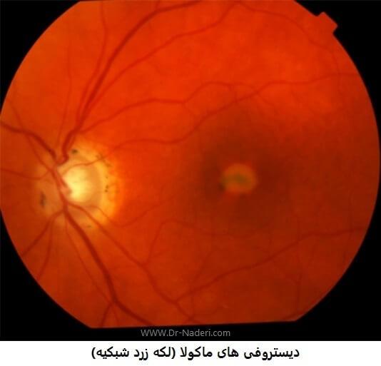retinal macular dystrophy    دیستروفی های ماکولا (لکه زرد شبکیه)