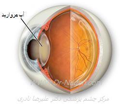 آب مروارید یا کاتاراکت cataract