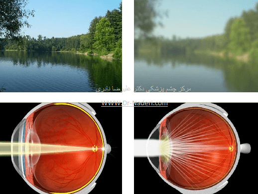 علائم آب مروارید cataract symptom