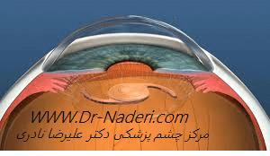 تعویض لنز طبیعی clear lens extraction