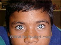 آب مروارید مادرزادی congenital cataract 1آ