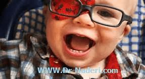 آب مروارید مادرزادی congenital cataract