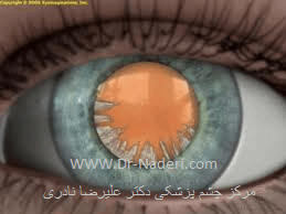 آب مروارید قشری cortical cataract