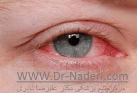 آلرژی چشم eye allergy