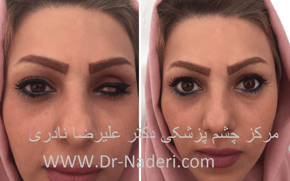 پروتز چشمی eye prosthsis