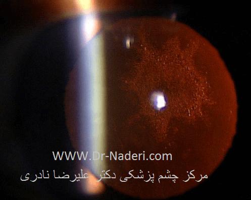 آب مروارید زیر کپسولی خلفی posterior subcapsular cataract