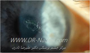 خراش راجعه قرنیه recurrent corneal erosion