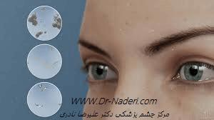 علل خراش راجعه قرنیه recurrent corneal erosion