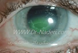 تشخیص خراش راجعه قرنیه recurrent corneal erosion