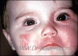 قرمزی چشم ها در بیماری استورج - وبر red eyes sturge weber