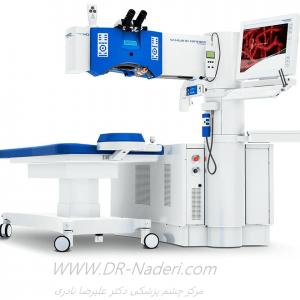 ددستگاه لیزر اگزایمر shwind excimer laser system