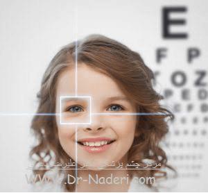 تنبلی چشم Amblyopia