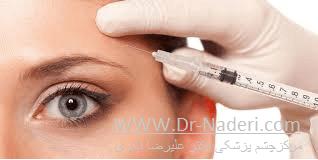 تزریق بوتاکس Botox