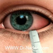 خشکی چشم بعد از لیزیک Dry Eye after LASIK